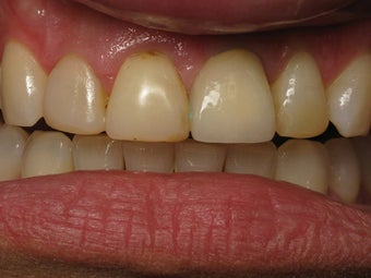 Implant Crown, Bonding & Veneer Before & After Photo before 996255