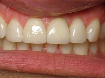 Implant Crown, Bonding & Veneer Before & After Photo after 996255
