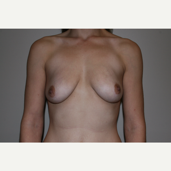 25-34 year old woman treated with Breast Augmentation before 3768635