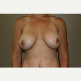 25-34 year old woman treated with Breast Augmentation after 3768635