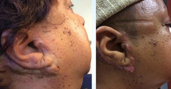 58 year old woman with Keloids