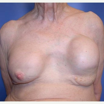 75 and up year old woman treated with Breast Reconstruction before 1585122