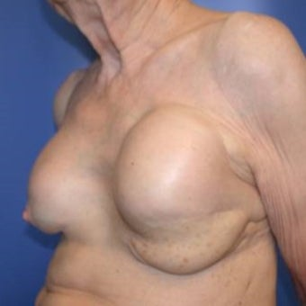 75 and up year old woman treated with Breast Reconstruction 1585122