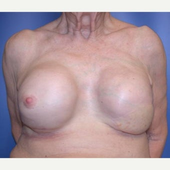 75 and up year old woman treated with Breast Reconstruction after 1585122