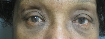 Lower eyelid bags removal after 929689
