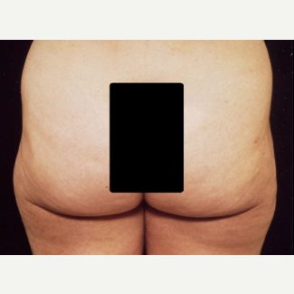 42 year old woman treated with Liposuction after 3094713