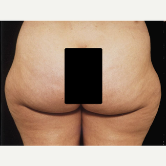 42 year old woman treated with Liposuction before 3094713