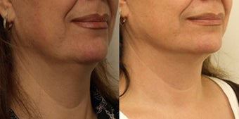 Jowl Lift - non surgical before 910736