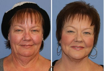 Neck lift under local anesthesia and twilight sedation 252451