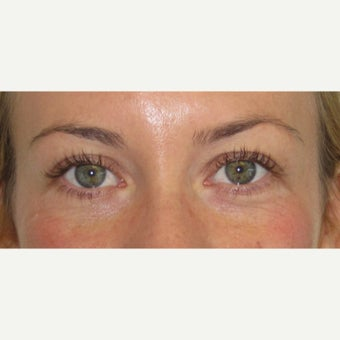 25-34 year old woman treated with Eye Bags Treatment after 2438634