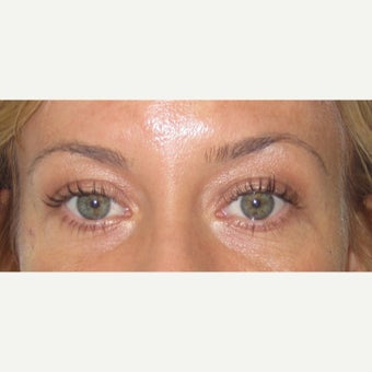 25-34 year old woman treated with Eye Bags Treatment before 2438634