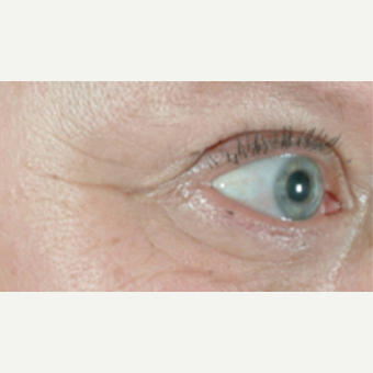 45-54 year old woman treated with Skin Rejuvenation before 3141939