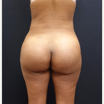 25-34 year old woman treated with Liposuction after 3731911
