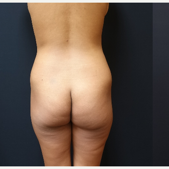 25-34 year old woman treated with Liposuction before 3731911