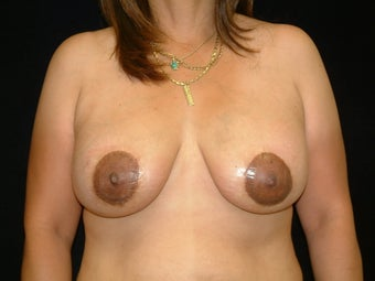 35-44 year old woman treated with Donut Breast Lifts with Natrelle Silicone Implants after 3142850