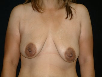 35-44 year old woman treated with Donut Breast Lifts with Natrelle Silicone Implants before 3142850