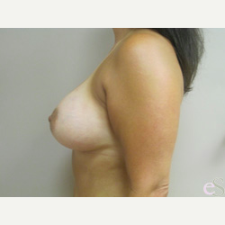 Breast Implants after 3373672