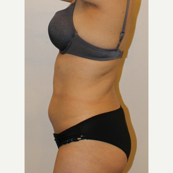 25-34 year old woman treated with Smart Lipo before 2999829