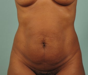 Tummy Tuck with Liposuction of Abdomen before 1431985