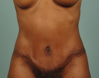 Tummy Tuck with Liposuction of Abdomen after 1431985