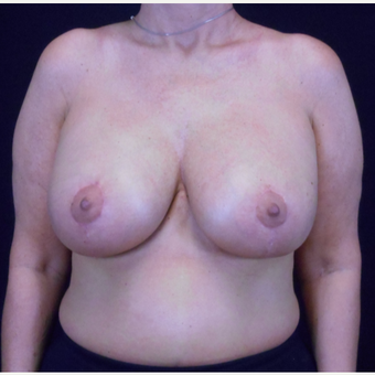 45-54 year old woman treated with Breast Lift with Implants after 3203216