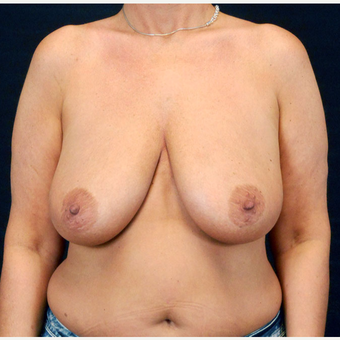 45-54 year old woman treated with Breast Lift with Implants before 3203216