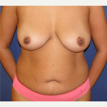 35-44 year old woman treated with Mommy Makeover before 3241036
