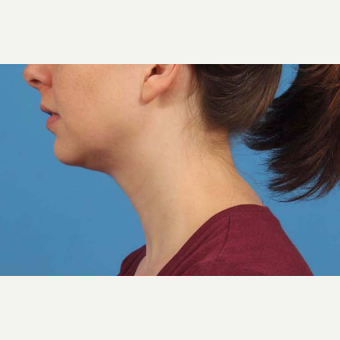 25-34 year old woman treated with Chin Liposuction after 3787648