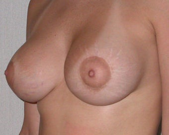 Breast Asymmetry Correction after 281324