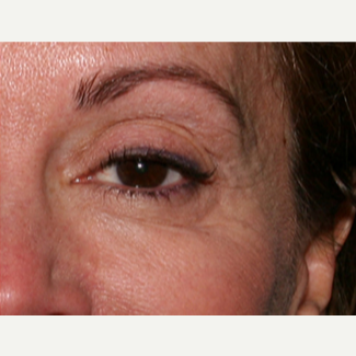 55-64 year old woman treated with Botox after 3345071