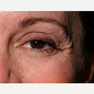 55-64 year old woman treated with Botox before 3345071
