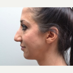 25-34 year old woman treated with Rhinoplasty before 3747750