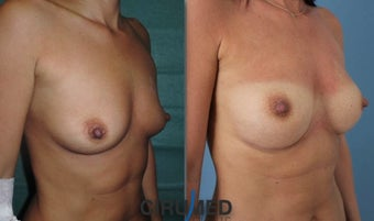 Fat transfer/silicone combination breast augmentation 1495334