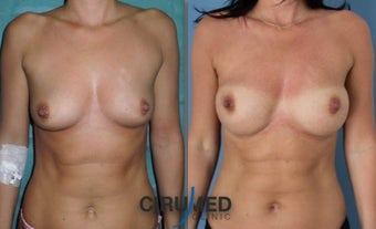 Fat transfer/silicone combination breast augmentation before 1495334