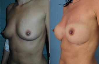 Fat transfer/silicone combination breast augmentation after 1495334