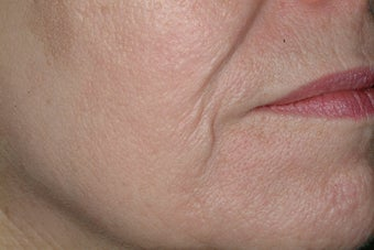 Acne scars treated with Fraxel after 86776