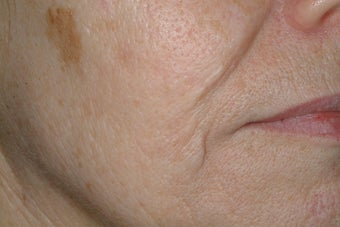 Acne scars treated with Fraxel before 86776