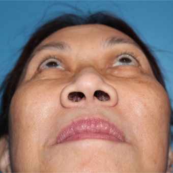 35-44 year old woman treated with Rhinoplasty before 3671744
