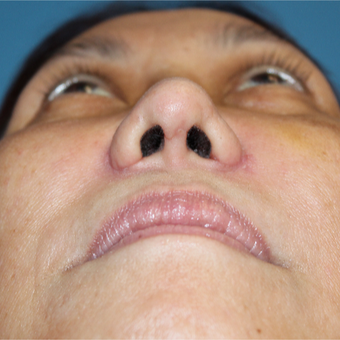 35-44 year old woman treated with Rhinoplasty after 3671744
