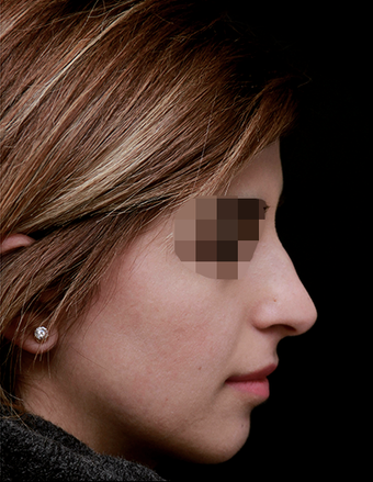 25-34 year old woman treated with Rhinoplasty after 3199847