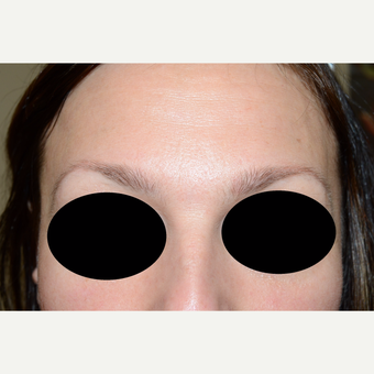 35-44 year old woman treated with Eyebrow Transplant before 3522718