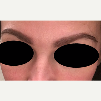 35-44 year old woman treated with Eyebrow Transplant after 3522718