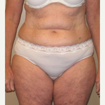 55-64 year old woman treated with Tummy Tuck before 1557680