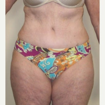 55-64 year old woman treated with Tummy Tuck after 1557680