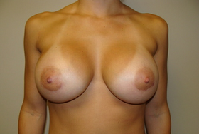 Breast Augmentation after 209897