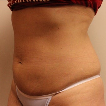 35-44 year old woman treated with CoolSculpting after 2121881