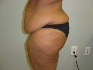 40 year old lady with excess skin after gastric bypass - side view before 621313