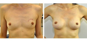 370g anatomic (teardrop) cohesive gel implant  bilateral 2 stage immediate tissue expander-implant breast recontruction after n