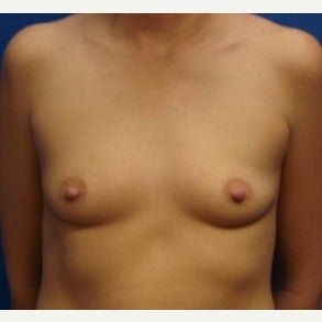 25-34 year old woman treated with Breast Augmentation before 2238834