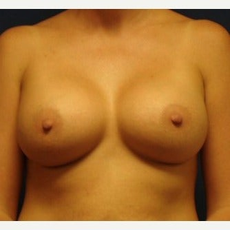 25-34 year old woman treated with Breast Augmentation after 2238834